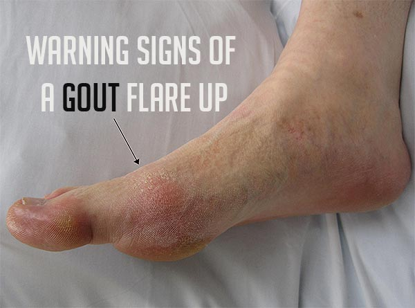 what foods cause gout symptoms high levels of uric acid in the blood may lead to gout arthritis natural remedy